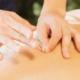 la acupuntura para la ansiedad